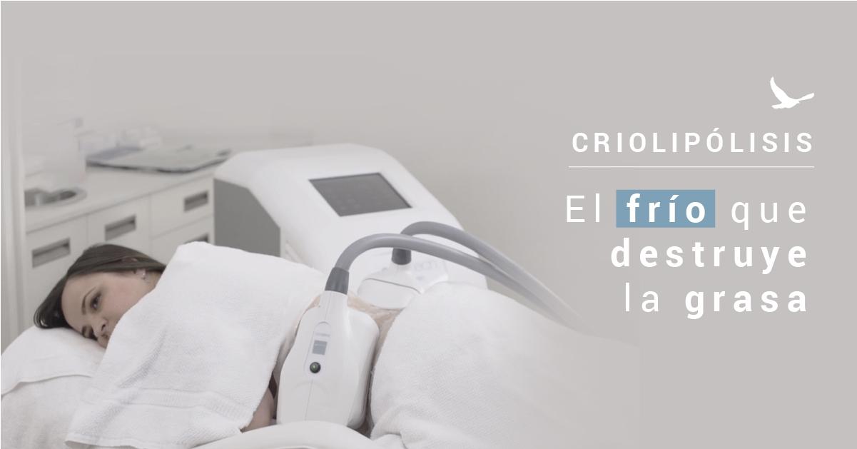 Criolipólisis, como reducir tu abdomen sin cirugía.