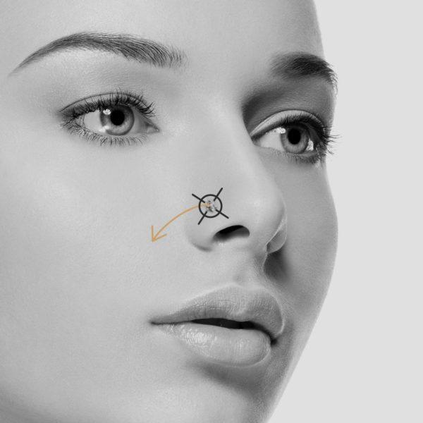 Eliminación del agujero del piercing con PLEXR®