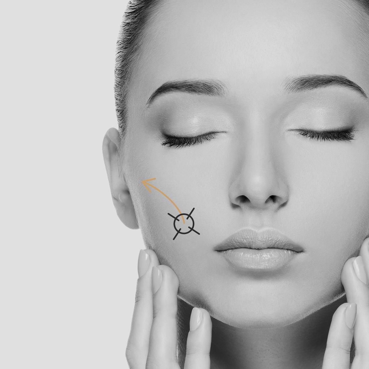 Eliminación cicatrices con Dermapen
