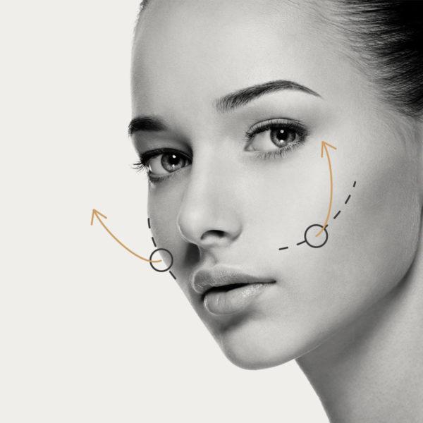 HIFU Facial