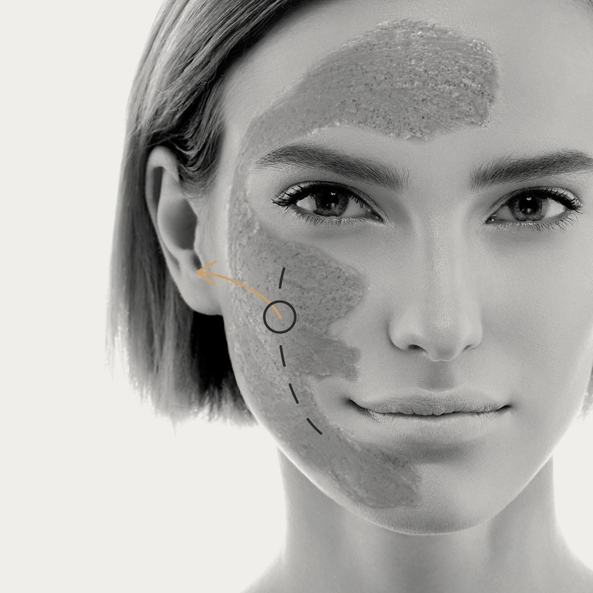 Peeling químico médico facial