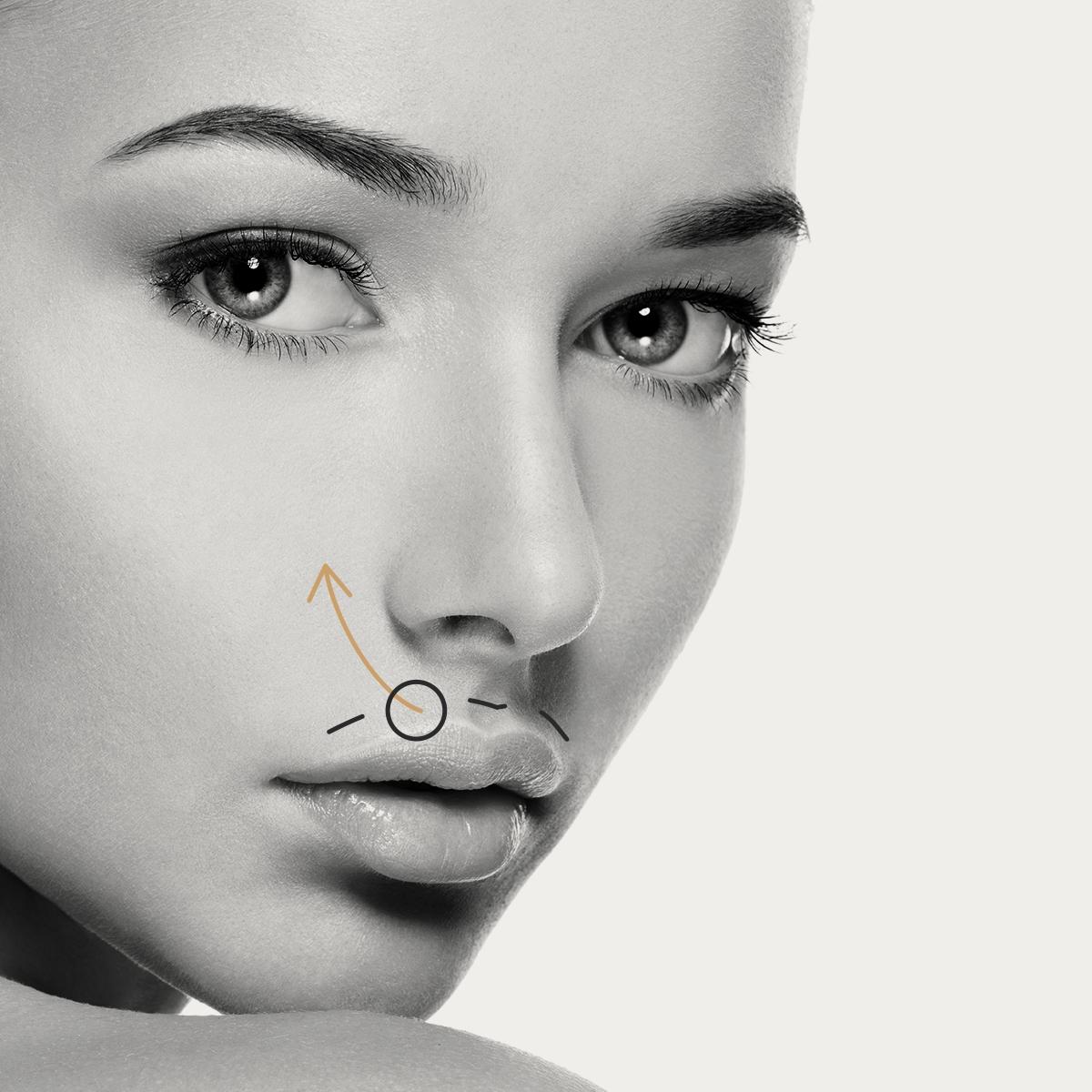 Aumento o perfilado de labios con Ácido Hialurónico