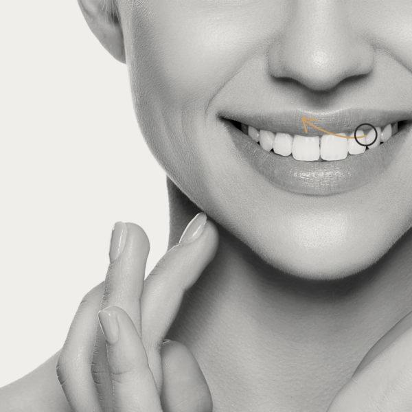 Tratamiento sonrisa gingival