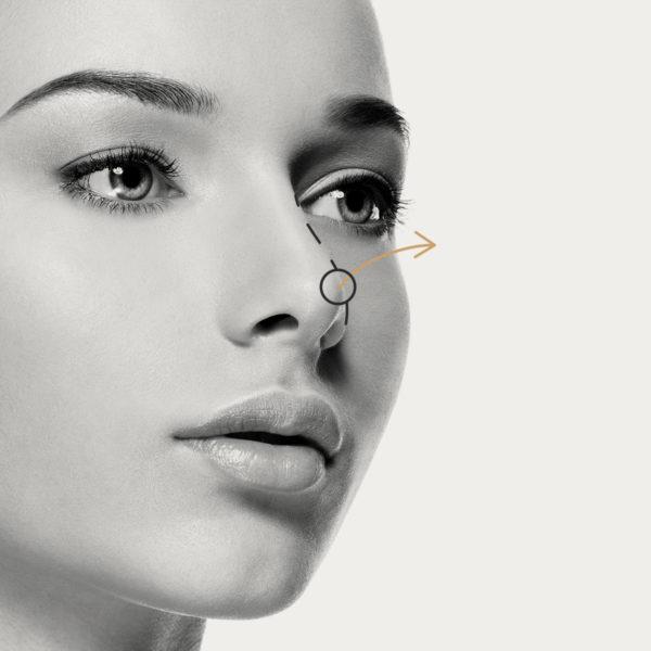 Elevación punta de nariz con Radiesse