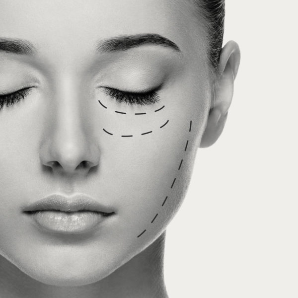 Cinetic Lift facial