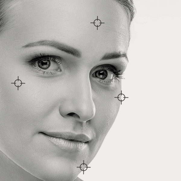 Resourfacing fraxel facial: cicatrices, marcas de acné, imperfecciones – Ellipse Nordlys