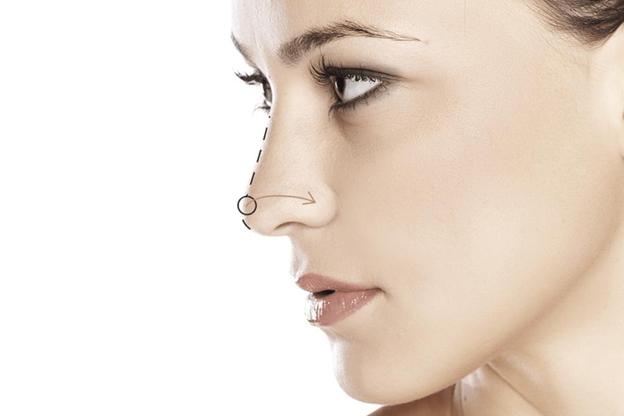 ¿Cómo definir tu nariz sin necesidad de cirugía?